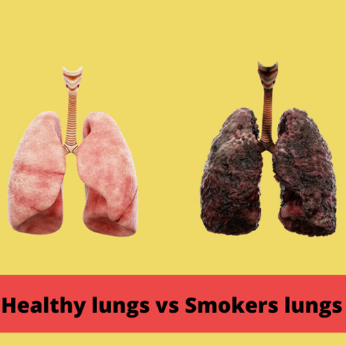 Two lungs together, one healthy, one damaged.